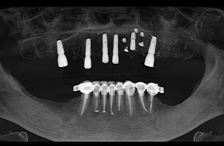 Имплантация, Клиника доктора Кремешного