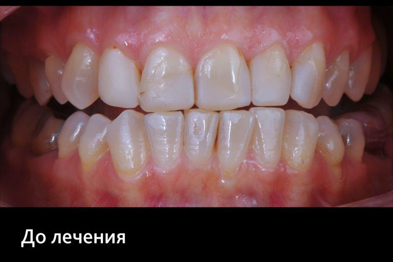 Виниры, Клиника доктора Кремешного