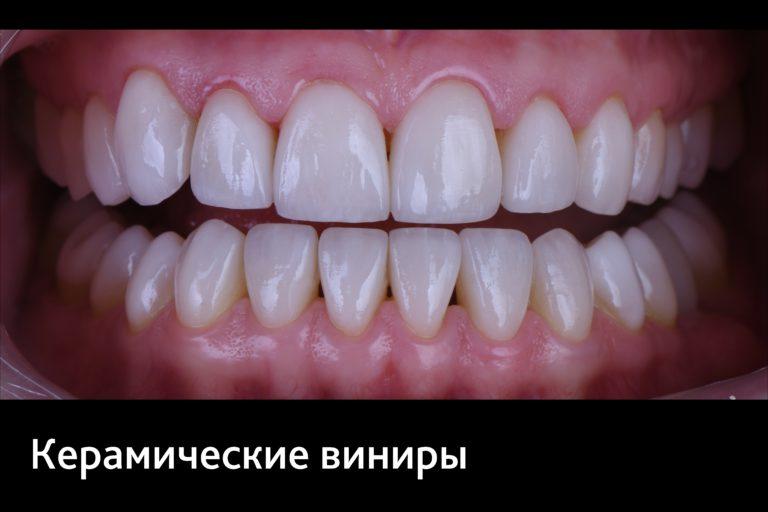 Брекеты, виниры, Клиника доктора Кремешного